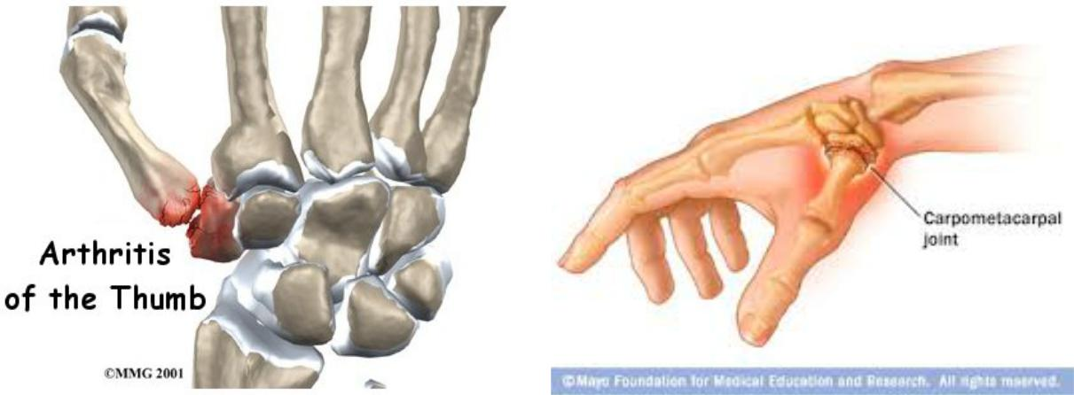 The thumb carpometacarpal joint