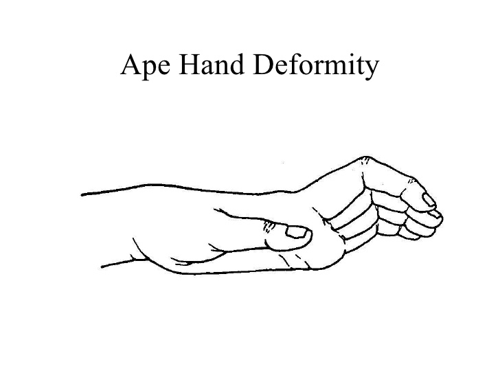 hands upper extremity