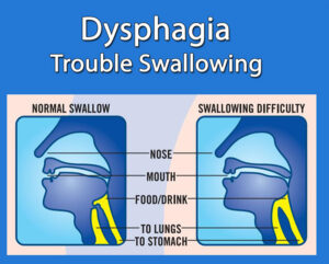 Dysphagia: Trouble Swallowing